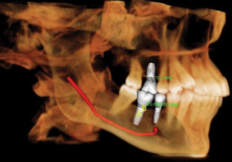 startlight-dental-clinic-scan-ct-3d