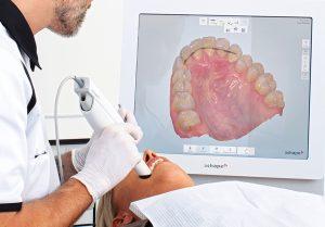 starlight-dental-clinic-may-scan-khoang-mieng