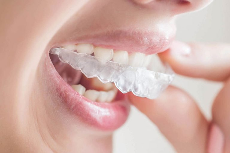 starlight-dental-clinic-nieng-rang-3D-clear-aligner