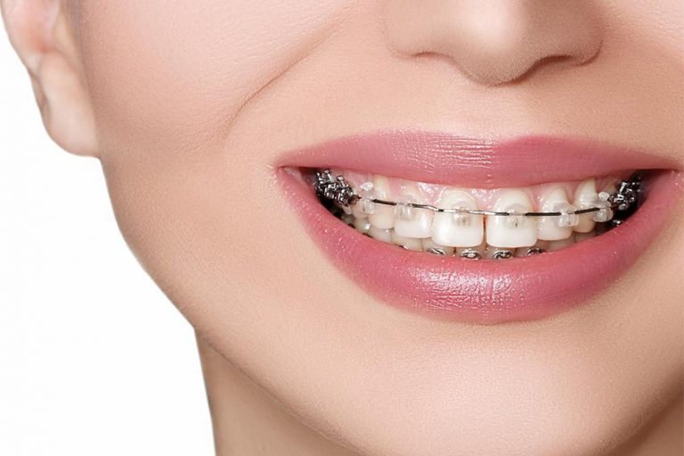 starlight-dental-clinic-nieng-rang-tham-my