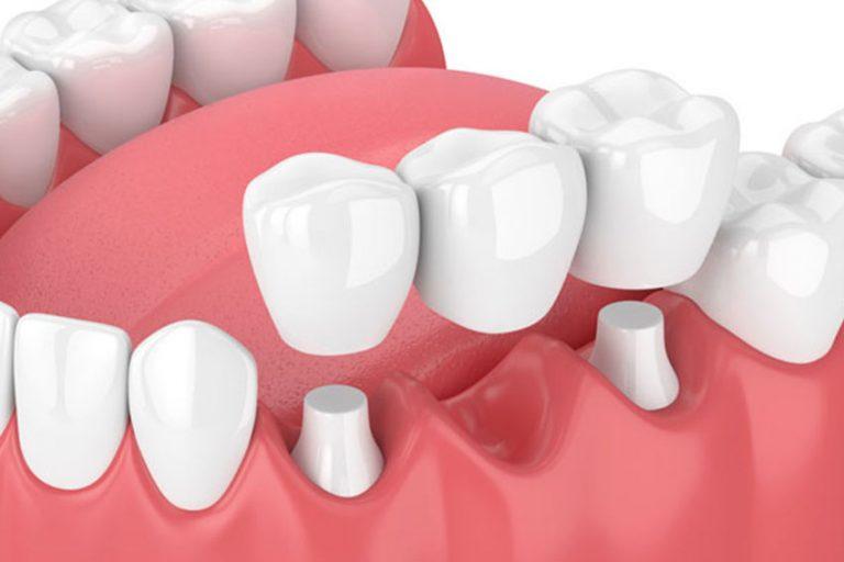 Starlight-dental-clinic-dental-crown-bridge
