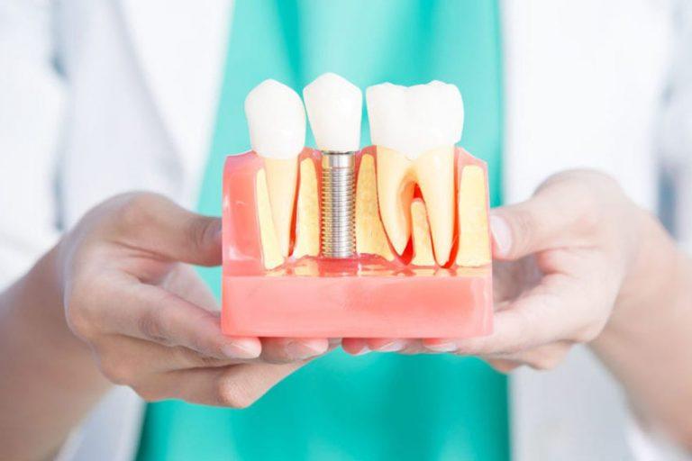 Starlight-dental-clinic-dental-implant