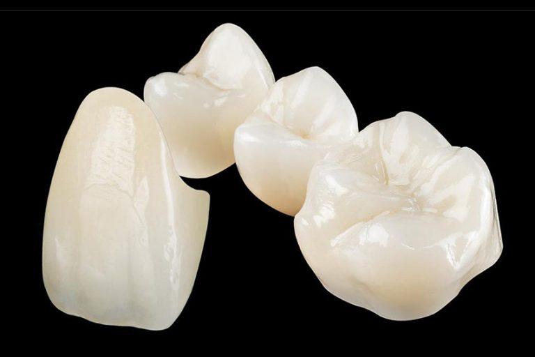 Starlight-dental-clinic-full-ceramic-crown-onlay