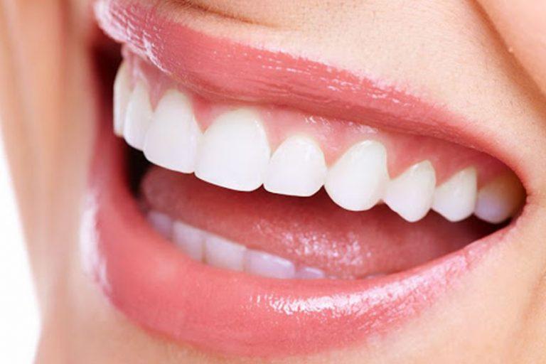 Starlight-dental-clinic-gum-recontouring
