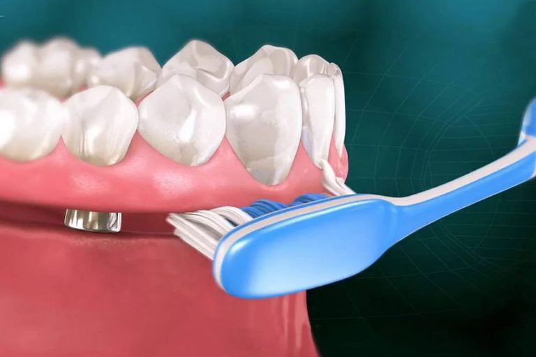 Starlight-dental-clinic-home-care-for-implants