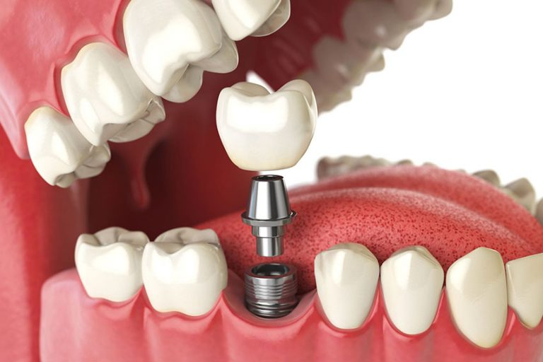Starlight-dental-clinic-implant-placement-procedure