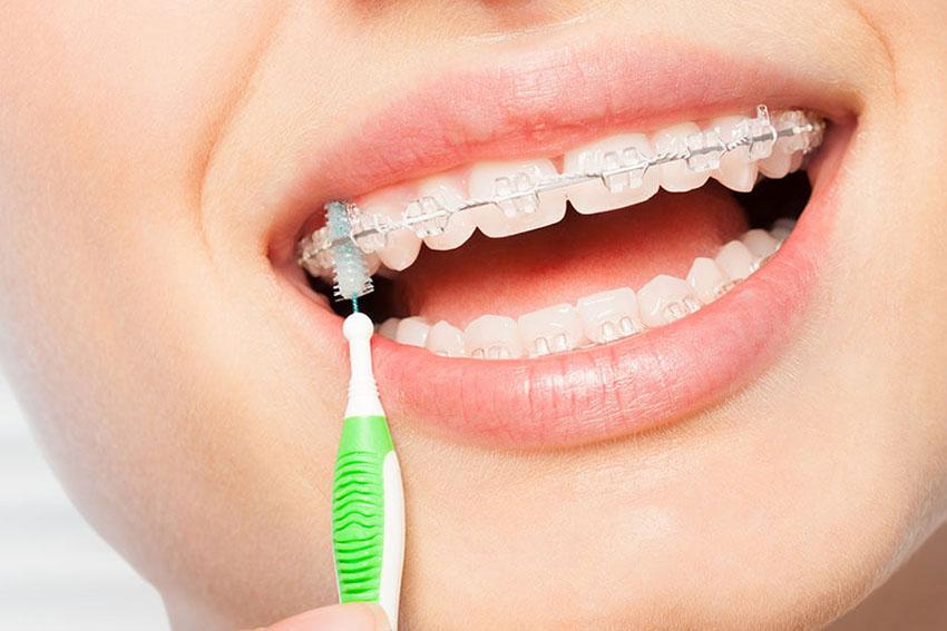 starlight-dental-clinic-Oral-Hygiene-with-Brace