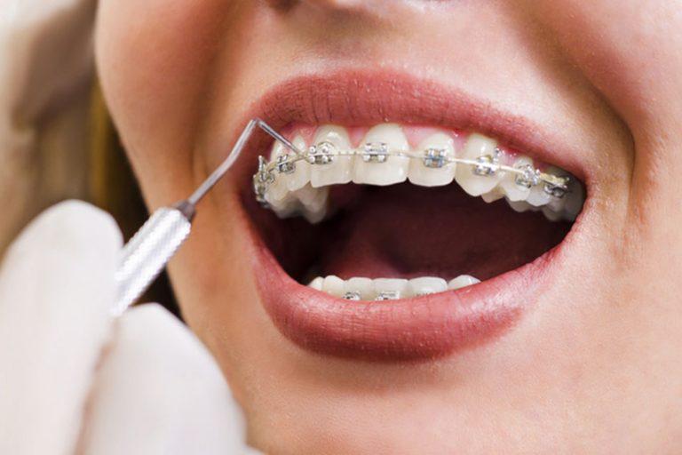 Starlight-dental-clinic-khan-cap-trong-chinh-nha