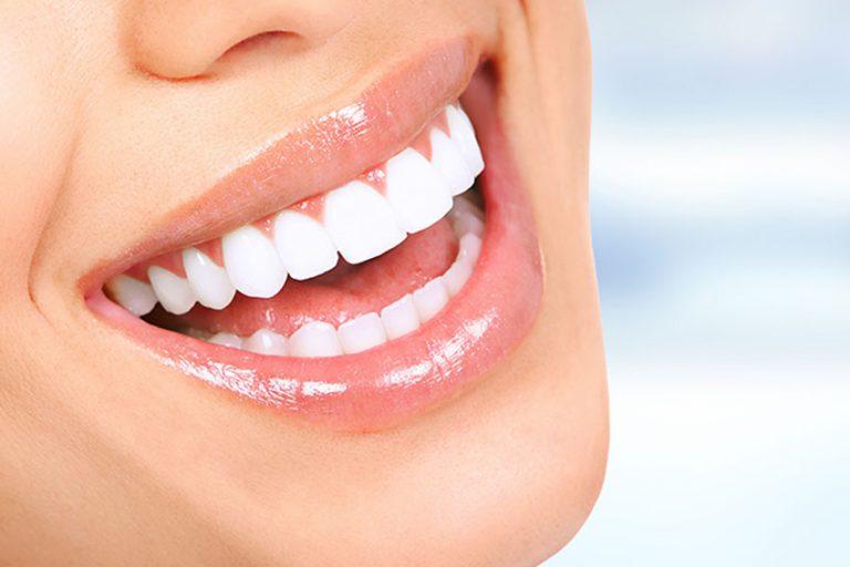 starlight-dental-clinic-teeth-whitening