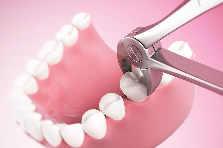 starlight-dental-clinic-tooth-removal-extraction