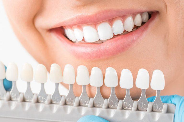 Starlight-dental-clinic-dental-veneers