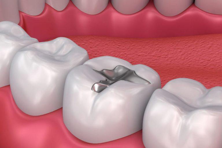 Starlight-dental-clinic-dental-filling