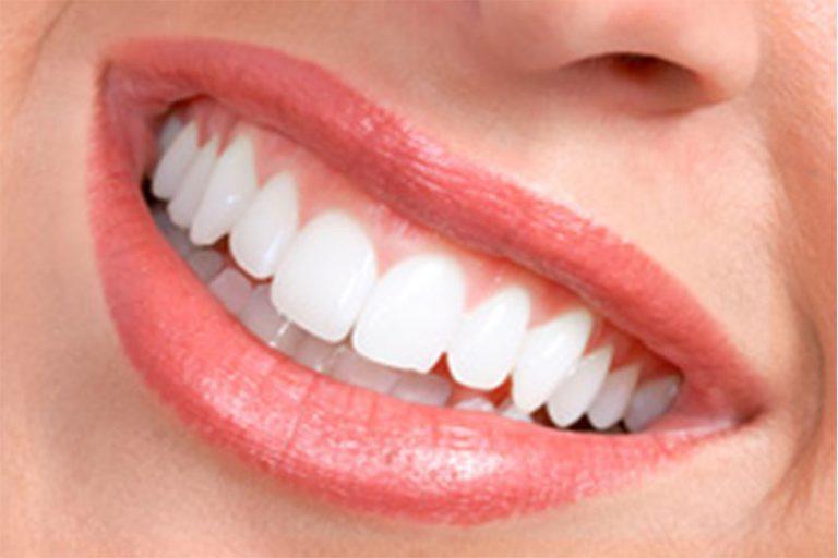 Starlight-dental-clinic-gum-care