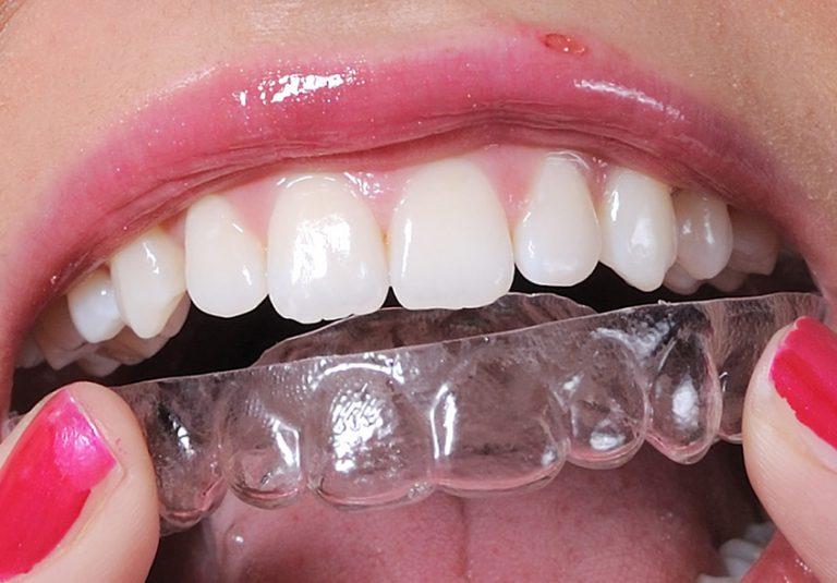 starlight-dental-clinic-nieng-rang-trong-suot