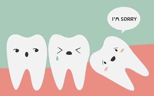 starlight-dental-clinic-wisdom-teeth-extraction